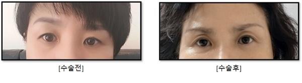 노화로 인해 눈썹 바깥쪽이 처져(좌측사진) 눈썹거상술 시행 후 통증과 이상증상으로 심각한 스트레스와 체중감소는 물론, 눈꺼풀이 꺼지면(우측사진) 눈꺼풀이 말려들어가 불편하고 사나운 인상으로 바뀔 수 있다(사진출처=제보자 K씨).