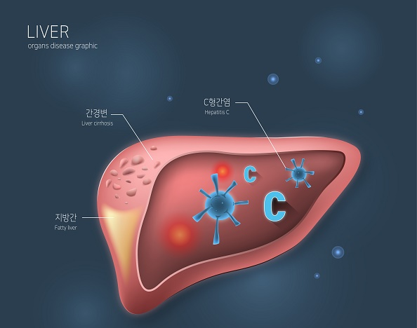 Early diagnosis and treatment are very important as hepatitis C is considered to be the main cause of liver cancer, which has the greatest socioeconomic burden. Experts on liver diseases emphasize that the government should actively seek out patients with underlying hepatitis C, and the public should also be alert to the disease and try to prevent and manage it (image=ClipArt Korea).